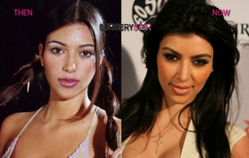 Kim Kardashian Before Plastic Surgery Funny Pictures