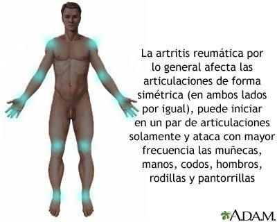 Artritis reumatoide.-La artritis reumatoide es una enfermedad autoinmune en la cual el sistema inmunológico del cuerpo se ataca a sí mismo. Por lo general, las articulaciones se afectan con un patrón simétrico que ataca las manos y otras articulaciones y empeora en la mañana. La artritis reumatoide también es una enfermedad sistémica que afecta otros órganos del cuerpo, mientras que la osteoartritis se limita a las articulaciones. Con el tiempo, ambos tipos de artritis pueden causar…