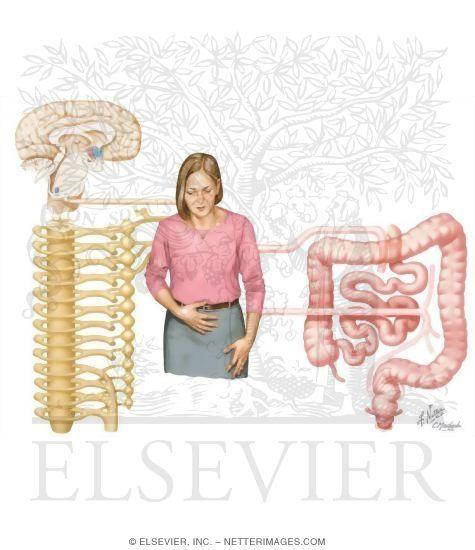 47 Best Irritable Bowel Syndrome Images On Pinterest