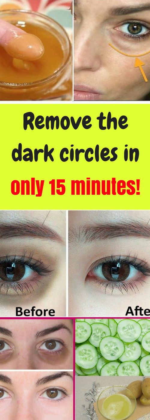 Dark circles under the eyes is a common problem for many people. This condition happens as a result of tiredness, not enough sleep, or some other medical conditions. There are many creams on the market that can remove the dark circles but not all of them are effective enough and they are also full of harmful chemicals.