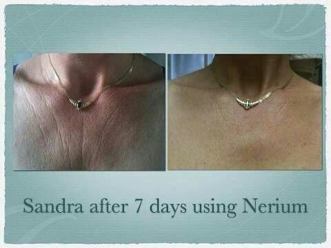The picture speaks for its self. Find out what Nerium can do for you!!http://www.Tanelson.nerium.com