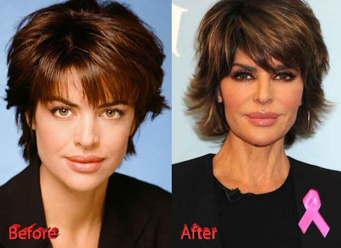 Lisa Rinna Before and After Surgery  6980460bb0d1