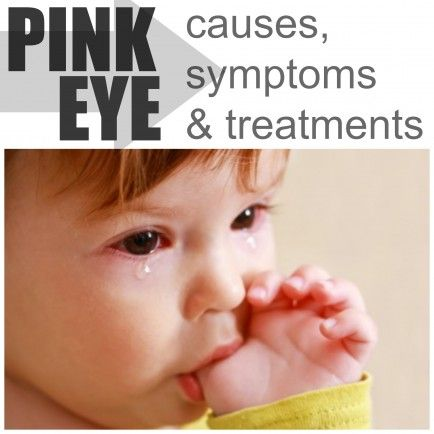 Conjunctivitis causes and cures