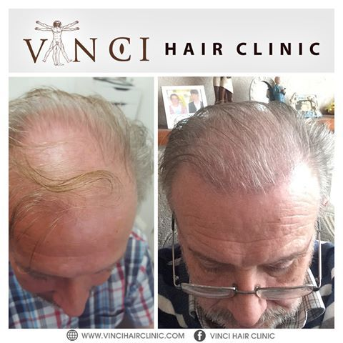 Robert Murphy's before and after photos show how hair transplant surgery has transformed his appearance. Robert came to Vinci Hair Clinic Dublin  with significant balding at his temples and crown. 14-16 weeks after having 4000 hairs transplanted into 2134 grafts, his results are looking excellent and will continue to get better over the coming months. ▶️ Book your free consultation - We have Clinics worldwide! https://www.vincihairclinic.com/locations/