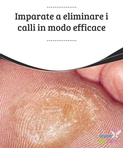 Imparate a #eliminare i calli in modo #efficace #Rimedi naturali per eliminare i #calli ed avere #piedi più belli