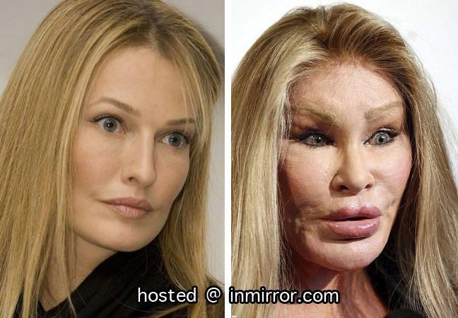 Omg, I had no idea she was that beautiful before all that nasty surgery! What a shame. God bless her, she must've never felt good enough. Karen Mulder Plastic Surgery Before and After
