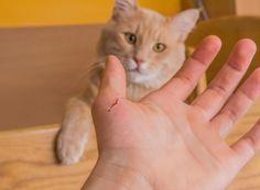 Vous avez peut-être déjà entendu parler de la maladie des griffes du chat. Elle est principalement transmise par la griffure ou la…