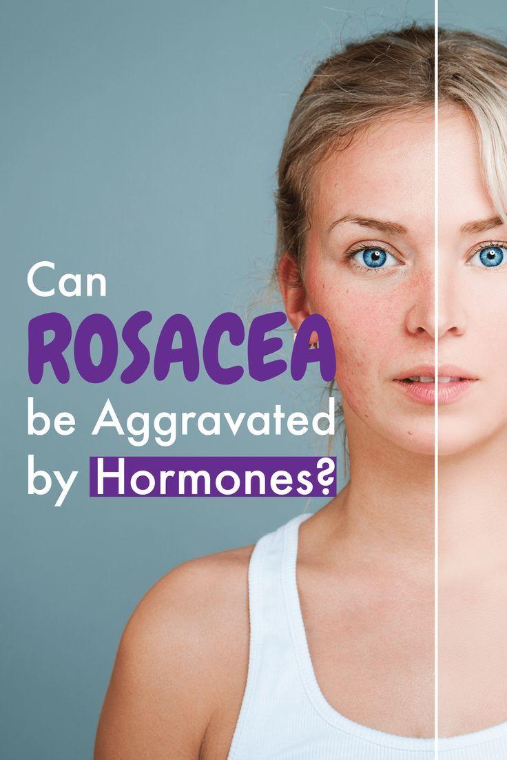 Hormones and rosacea