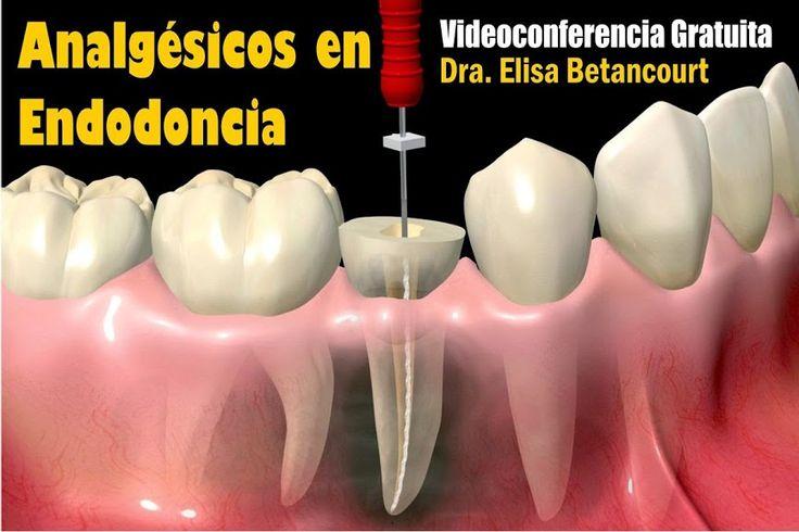 Videoconferencia: Analgésicos en Endodoncia - Dra. Elisa Betancourt | Odonto-TV