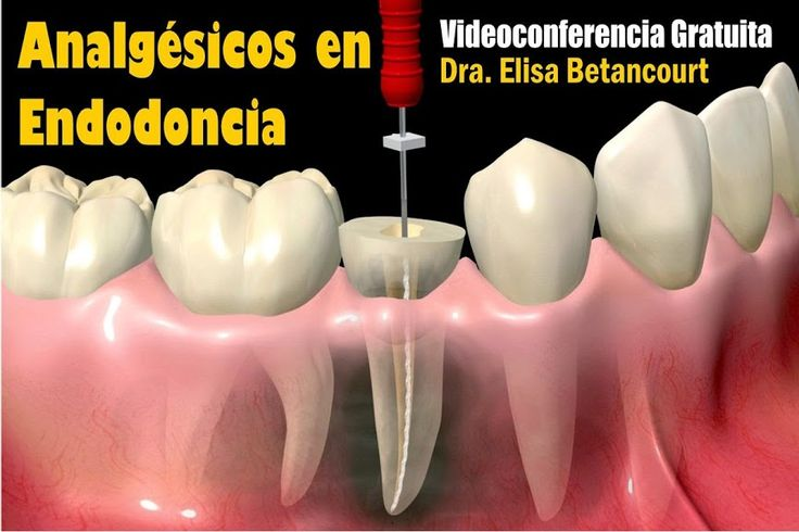 Videoconferencia: Analgésicos en Endodoncia - Dra. Elisa Betancourt   Odonto-TV