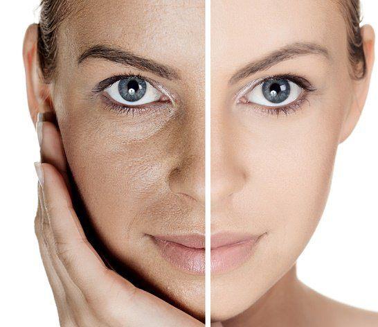 Remedios caseros para cerrar los poros abiertos de la cara