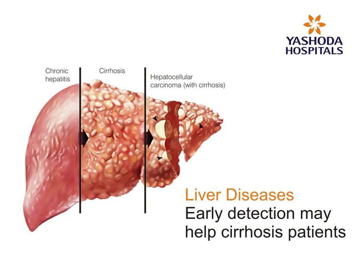 Liver Cirrhosis- Early detection may help patients | Liver ...