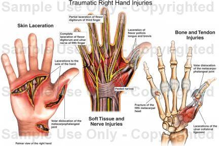hand anatomy traumatic right hand injuries | medical illustration, Cephalic vein