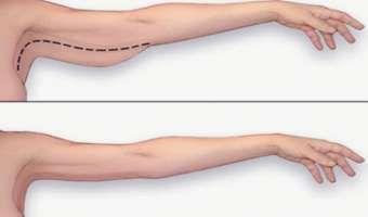 Cómo eliminar la grasa del brazo rápidamente en tu casa sin recurrir a costosas cirugías
