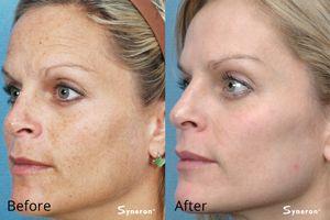 IPL Special at Advanced Laser & Skin Center - http://advancedlaserandskincenter.com/wp-content/uploads/2016/02/ipl-freckles-ba.jpg - http://advancedlaserandskincenter.com/latest-news/ipl-special-at-advanced-laser-skin-center/