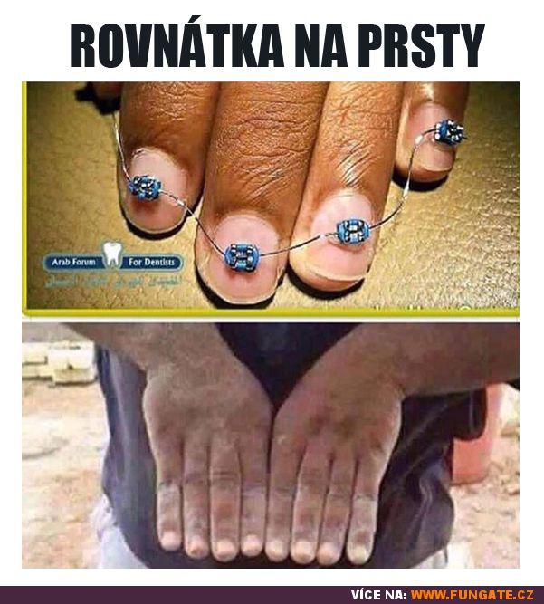 Rovnátka na prsty