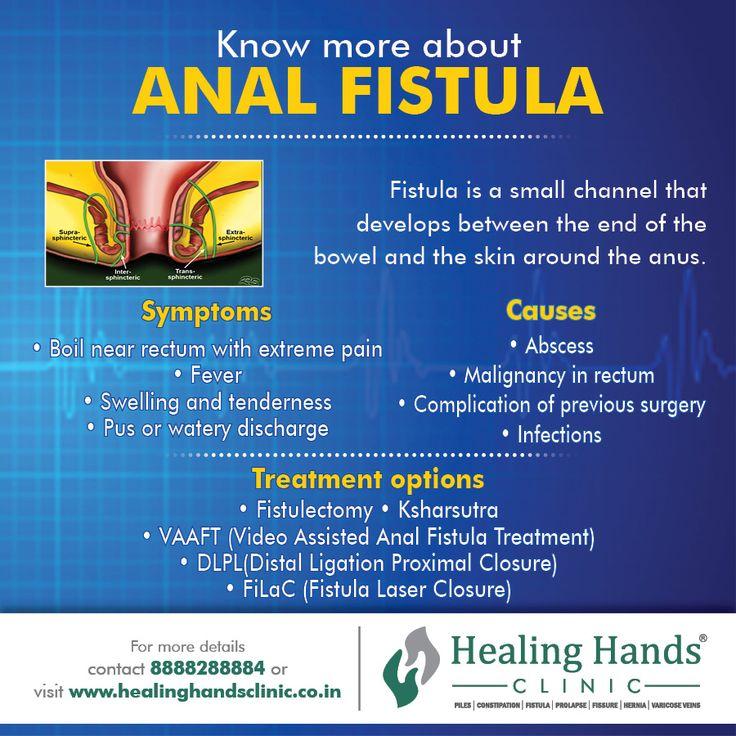 Pin by Healing Hands Clinic Pune on Fistula Pinterest