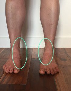 Fixing Flat Feet – Yes, You Can!
