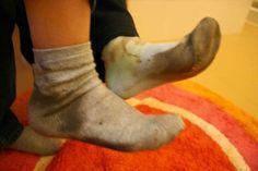 Desencardir as meias: Deixe as meias de molho com água bem quente e suco de 1…