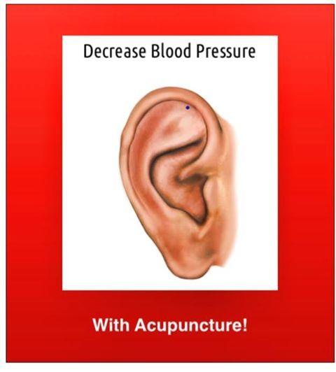 31 best Acupuncture images on Pinterest   Acupuncture ...