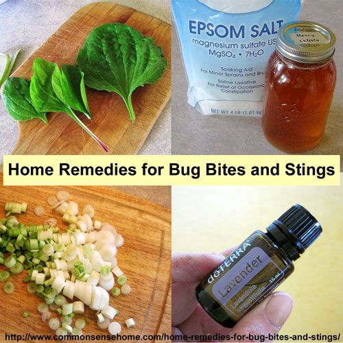 Home Remedies for Bug Bites and Stings @ Common Sense Homesteading   -   http://www.commonsensehome.com/home-remedies-for-bug-bites-and-stings/