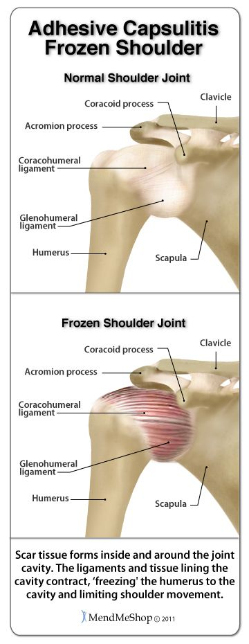 Frozen Shoulder Syndrome.