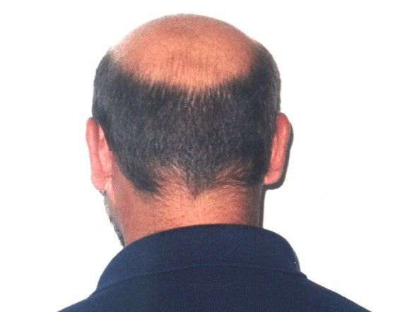 Early Male Pattern Baldness Signs