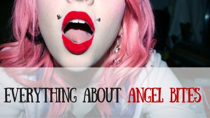 Find out everything you need to know about angel bites!