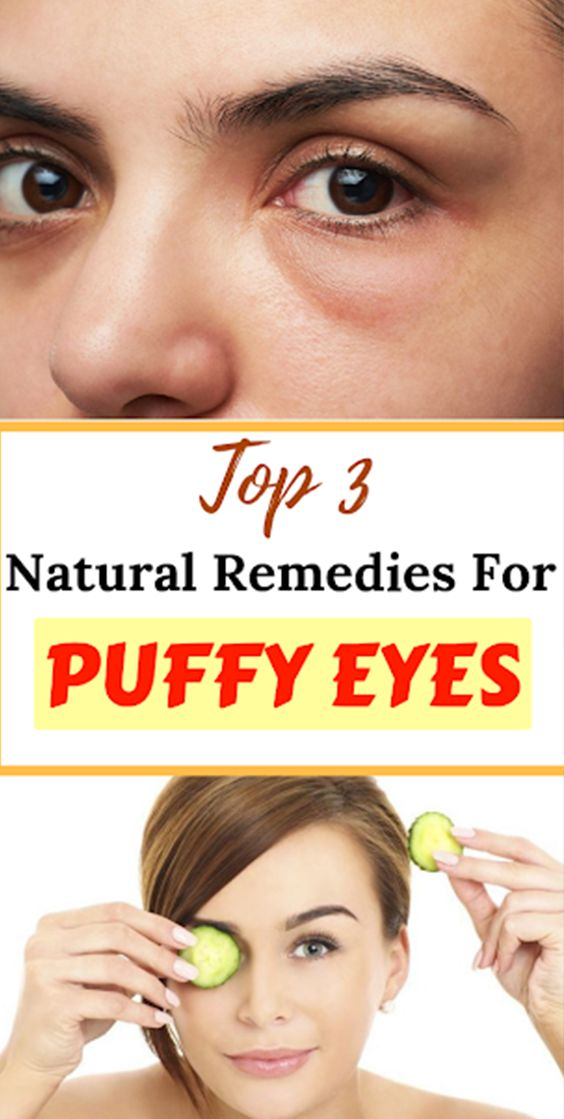 TOP 3 Natural Remedies For Puffy Eyes – Denise Galloway