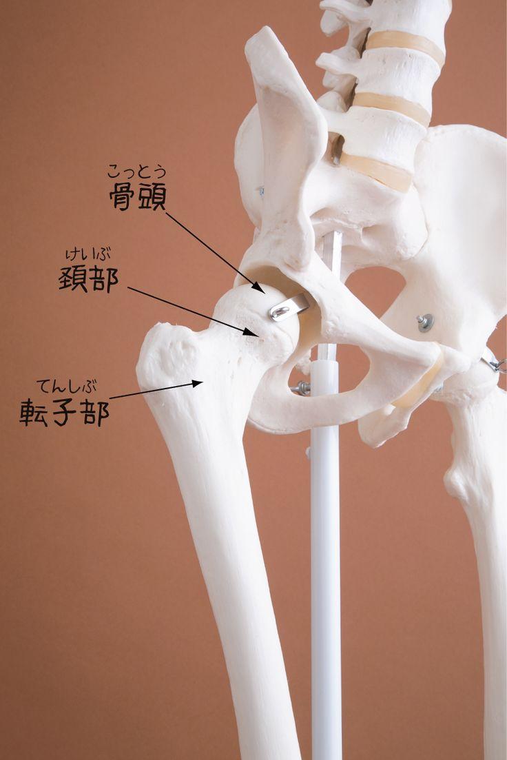 大腿骨頚部骨折の後遺症(後遺障害)の解説|等級調査【大分の弁護士による交通事故の無料相談】