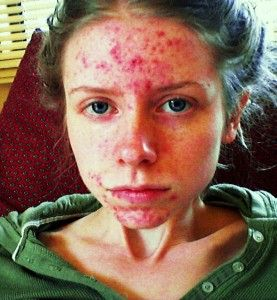 Guide to the Different Types of Acne