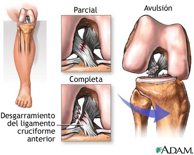 7 best Anatomia rodilla images on Pinterest | Fisioterapia ...