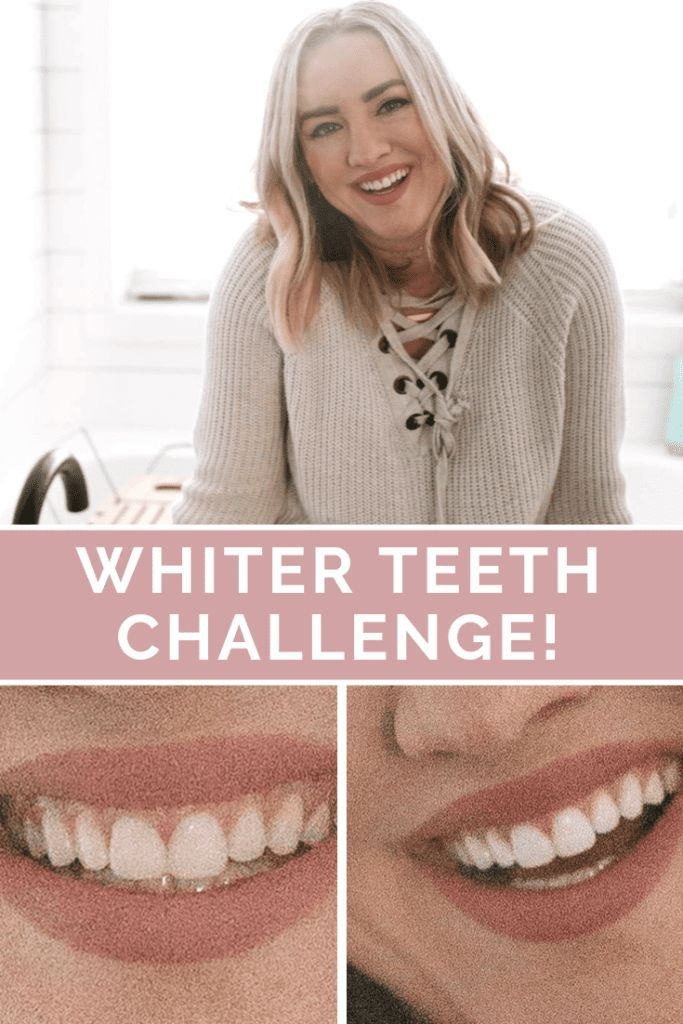 Crest White Strips Review And Challenge Crest White Strips