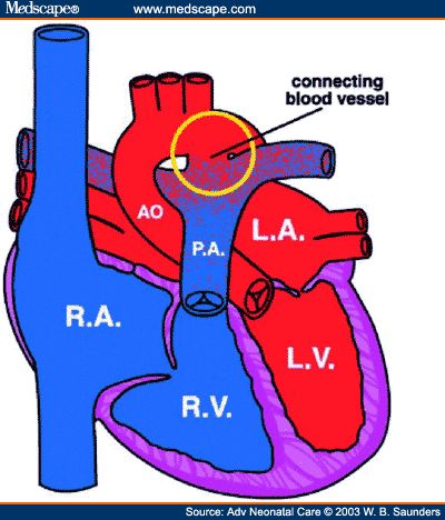 Patent Ductus Arteriosus - Pushing blood into lungs, quickly presents with CHF. Prostaglandin inhibitors given to force constriction