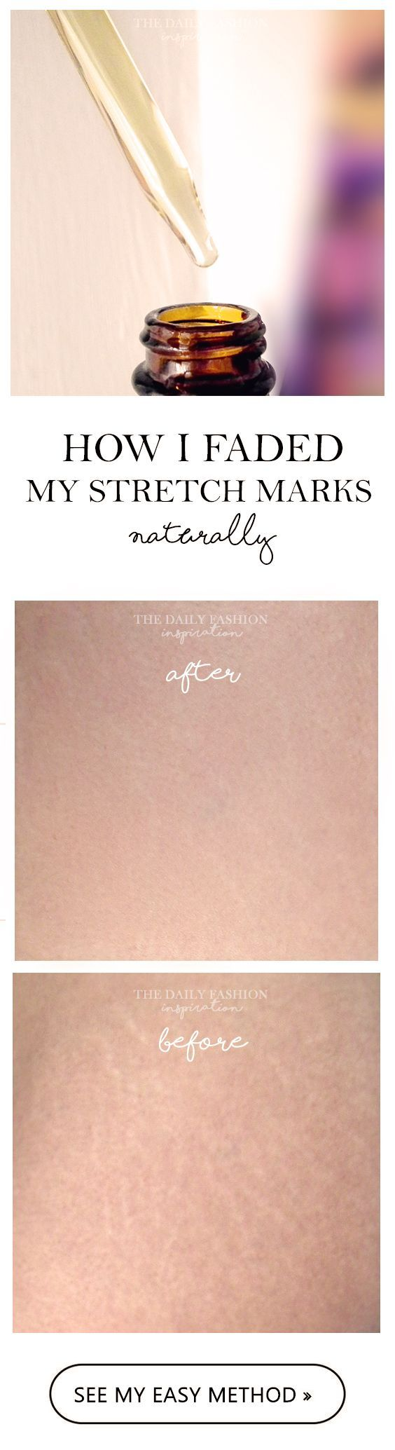 Read my easy but effective method off how I faded my stretch marks naturally, without chemical creams. Stretch mark removal is a step closed or at least fading them is possible. #stretchmarks #treatment