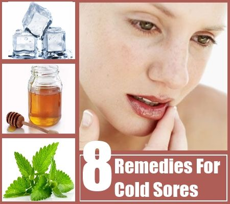 how to get rid of cold sores in 24 hours