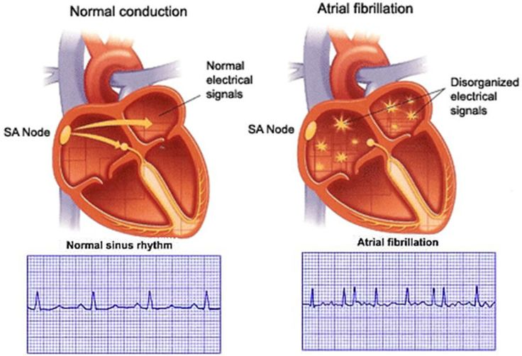 Fibrillation auriculaire : définition et facteurs favorisants - ameli-santé
