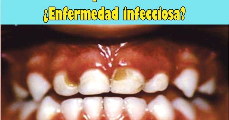 En el proceso de caries, la placa dental o biofilm es un microsistema de bacterias que tiene características fisiológicas como capacidad de ...