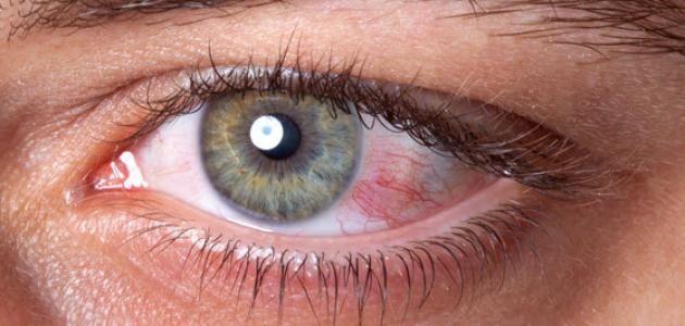 Pin On كل شيء عن صحة عينيك