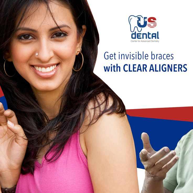 Latest trend in Orthodontics, Get invisible, comfortable braces at best dental clinic in Ahmedabad, India. US Dental Center for Advanced dentistry.