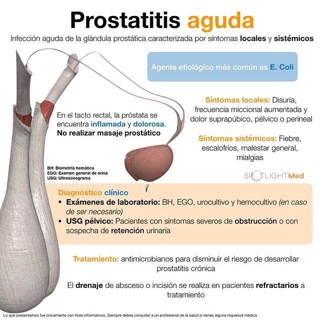 masajear la próstata ayuda con educacion