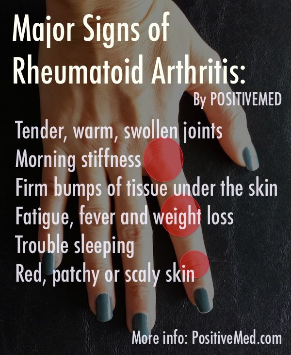What is Rheumatoid Arthritis? - Signs and symptoms of rheumatoid arthritis:  Joint pain and stiffness Pain in the big toe Bumps on the fingers Trouble sleeping Fatigue symptoms Red, patchy of scaly skin