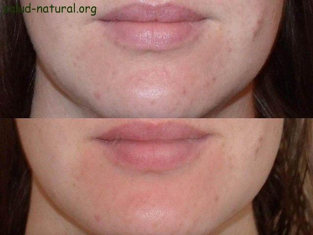treure l'acné