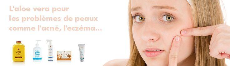 L'aloe vera pour les problèmes de peaux comme l'acné, l'eczéma… Peau grasse, points noirs,  gros boutons rouges à têtes blanches… L'acné est le lot quotidien de millions de personnes en France. Des adolescents, en grande majorité, mais aussi 22% des femmes adultes. Normal, les hormones, comme la génétique d'ailleurs, jouent un rôle important dans cette maladie chronique due à un excès de sébum, une substance huileuse qui protège la peau et qui, lorsqu'elle est produite en trop grande qté
