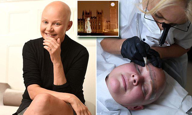 After 12 years of total hair loss, Gail Porter can finally raise an eyebrow thanks to a tattooing procedure