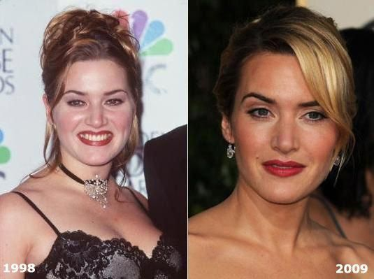 Plastic Surgery for the 2009 Best Actress Oscar Nominees : Makemeheal ... Always...
