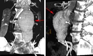 Las flechas rojas en las imýgenes indican un aneurisma de gran tamaýo en la aorta abdominal, vista de frente (imagen izquierda) y de perfil (imagen derecha).