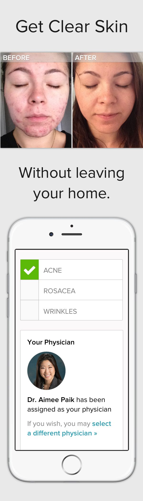 You can finally see a dermatologist from the comfort of your home. Start your acne consultation now — receive your personalized prescription treatment plan within 24 hours. No waiting. Start your path to clear skin today!