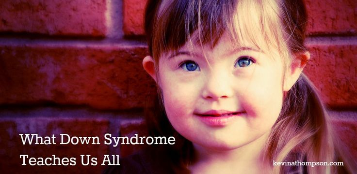 """What Down Syndrome Teaches Us All by kevinathompson.com. """"You don't always know what's best for you."""" #downsyndrome #worlddownsyndromeday #specialneeds"""