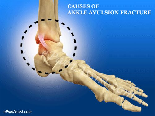 Causes of Ankle Avulsion Fracture